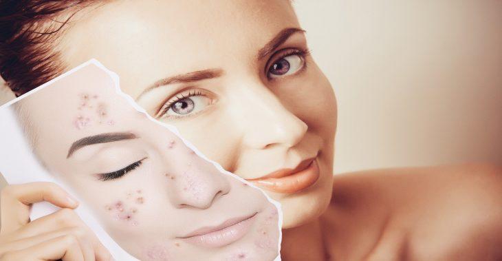 ¿Qué es el acné? Como tratarlo