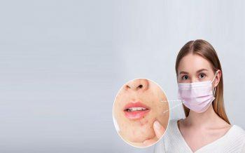 El cuidado de la piel vs las mascarillas